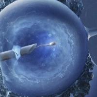 IVF III: Punkcija - 2. del
