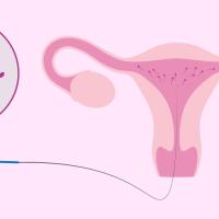 IUI (intrauterina inseminacija)